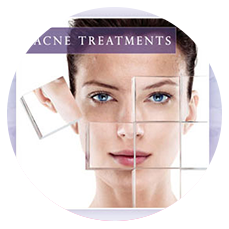 facial treatments for acne in Memphis TN